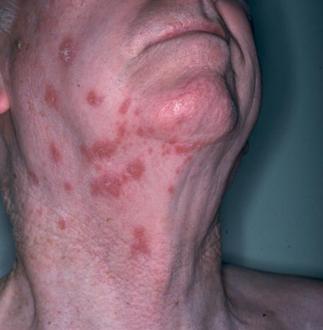 帯状疱疹画像.首と顔