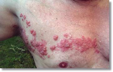 帯状疱疹画像