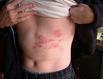 腹部にできた帯状疱疹の画像