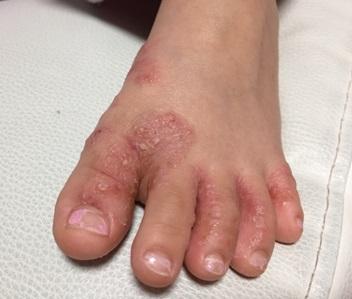 帯状疱疹の画像・足の指