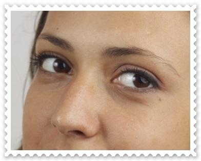 飛蚊症レーザー治療女性g