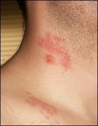 帯状疱疹の画像