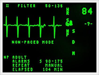 心臓の位置と心筋梗塞G