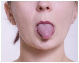 舌苔の取り方F