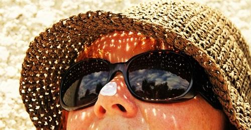 日焼けで顔が赤く腫れた女性の画像