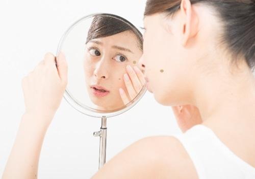 日焼けによるシミを鏡の見て気にする女性