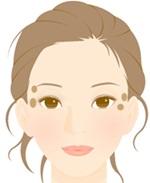 脂漏性角化症A