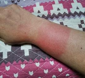日焼けによって赤くなった腕の画像