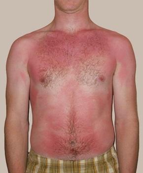 日光皮膚炎を起こした男性の画像