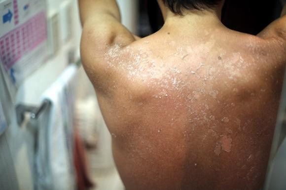 日焼け(日光皮膚炎)で背中の皮がむけてきた男性