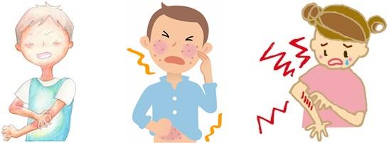 日光アレルギーのかゆみに苦しむ人達の画像